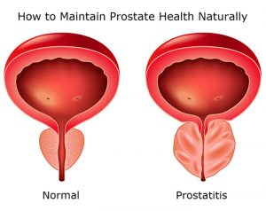 how to maintain prostate health naturally