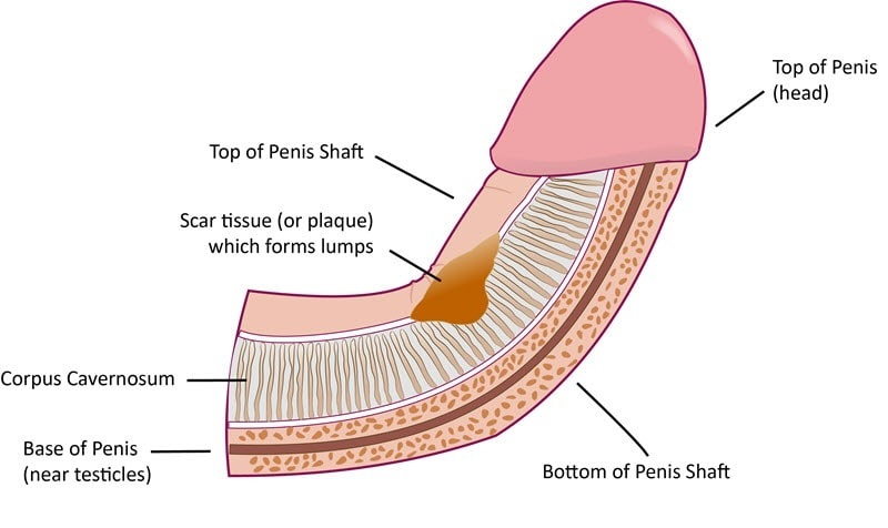 Penis crooked Category:Close